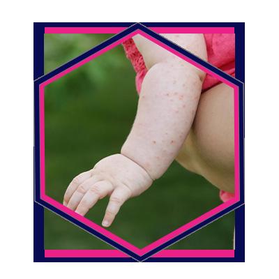 Allergy Website Design Agency - Pure Marketing