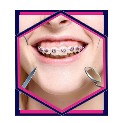 Orthodontics SEO Experts