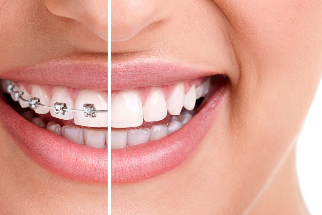 Orthodontics Marketing 5
