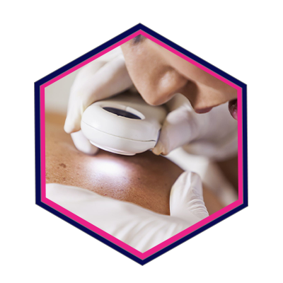 16, Pure Dermatology PPC Pay-Per-Click