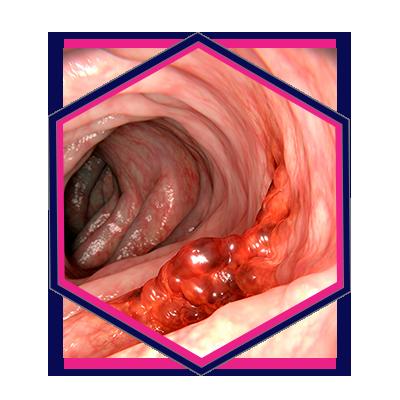 18, Pure Gastroenterology Marketing HX